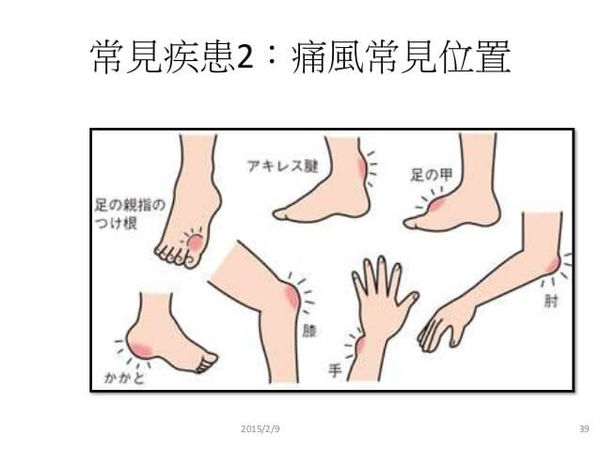 痛風症狀03.jpg