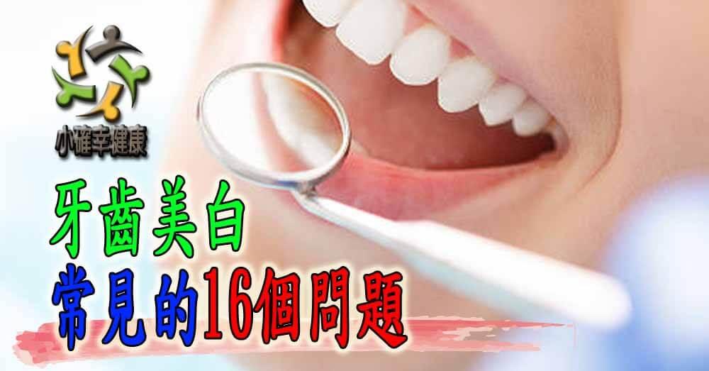 牙齒美白常見的16個問題